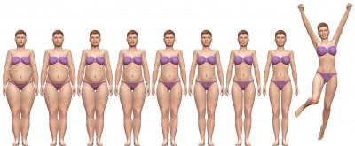 cirugia obesidad madrid