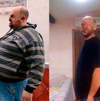 cirugia-bariatrica-bypass-gastrico-manga-gastrica-obesidad-morbida