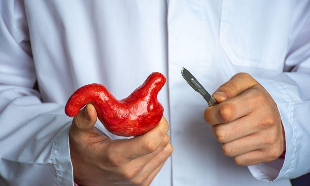 cirugía estómago