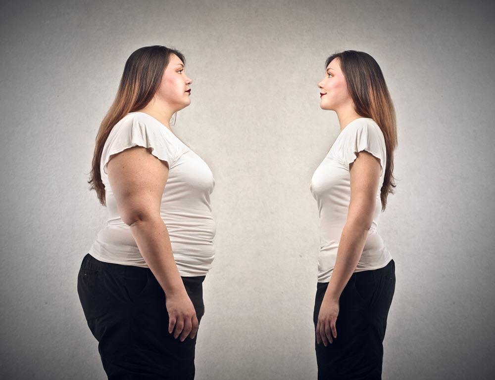 obesidad megarexia